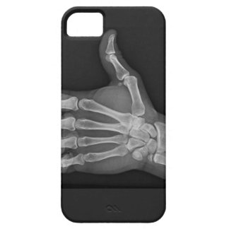 Thumbs up iPhone 5 cover