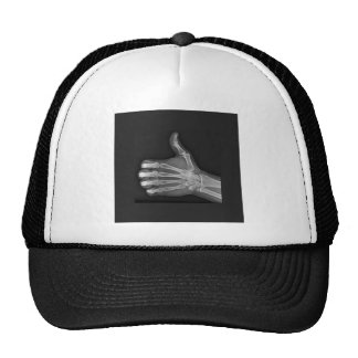Thumbs up hats