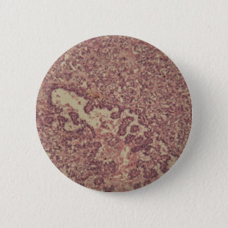 Thyroid gland cells with cancer 2 inch round button