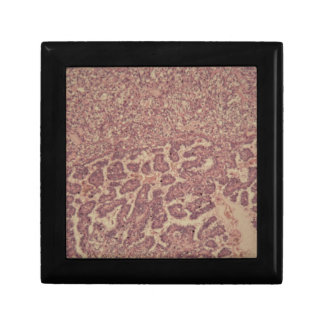 Thyroid gland cells with cancer gift box