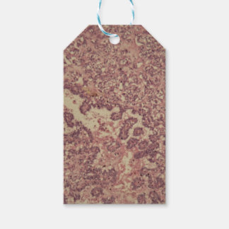 Thyroid gland cells with cancer gift tags