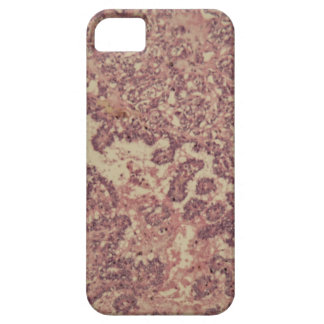 Thyroid gland cells with cancer iPhone 5 cases
