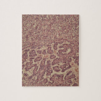 Thyroid gland cells with cancer jigsaw puzzle