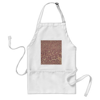 Thyroid gland cells with cancer standard apron
