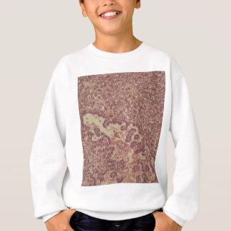 Thyroid gland cells with cancer sweatshirt