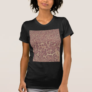 Thyroid gland cells with cancer T-Shirt