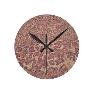 Thyroid gland cells with cancer wall clocks