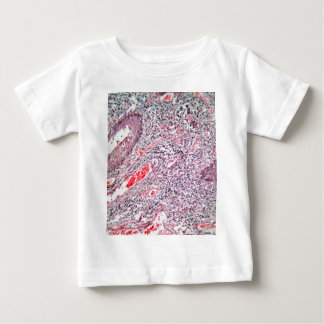 Tissue cells from a human cervix with cancer baby T-Shirt