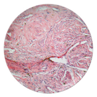 Tissue cells from a human cervix with cancer dinner plate