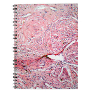 Tissue cells from a human cervix with cancer notebooks