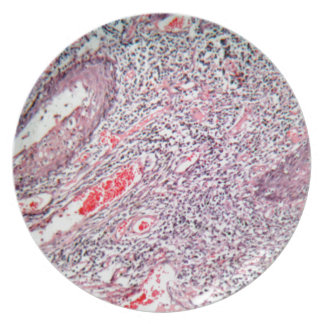 Tissue cells from a human cervix with cancer plate