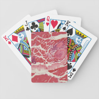 Trichinella spiralis larvae in muscle tissue under bicycle playing cards