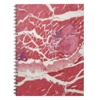 Trichinella spiralis larvae in muscle tissue under notebook