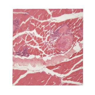 Trichinella spiralis larvae in muscle tissue under notepad