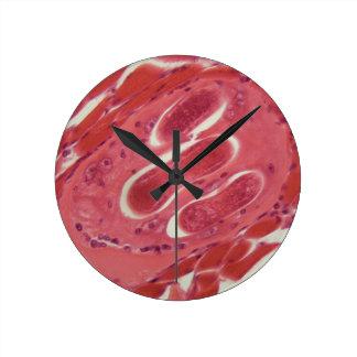Trichinella spiralis larvae in muscle tissue under round clock