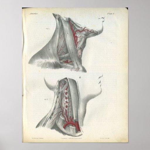 Vertebral Arteries Neck Anatomy Print