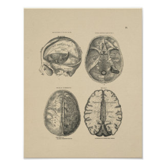 Vintage Brain Skull Anatomy 1880 Print