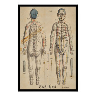 Vintage French 1825 Acupuncture Meridian Points Poster