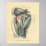 Vintage Frohse Anatomy of Arm & Shoulder Poster