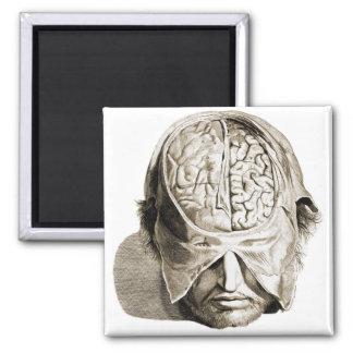 Vintage Skull Brain Medical Illustration Brains Magnet