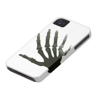 Vintage X-Ray Six Finger Hand Skeleton Bones iPhone 4 Cover