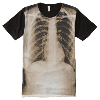X-Ray All-Over-Print T-Shirt