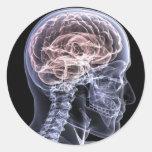X-Ray Brain Stickers