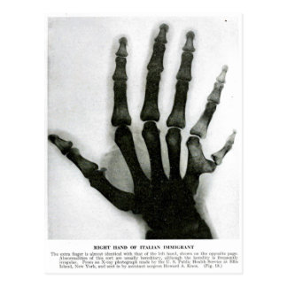 X-Ray Hand with Extra Finger Postcard