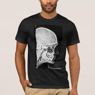 X-Ray Head T-Shirt