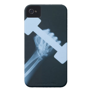 X-ray image of human hand with weight, close-up iPhone 4 cases