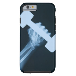 X-ray image of human hand with weight, close-up tough iPhone 6 case