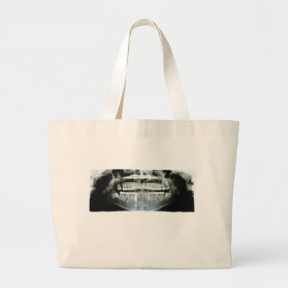 X-Ray Large Tote Bag