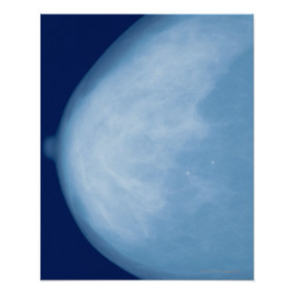 X-ray of female breast, side view poster