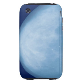 X-ray of female breast, side view tough iPhone 3 case