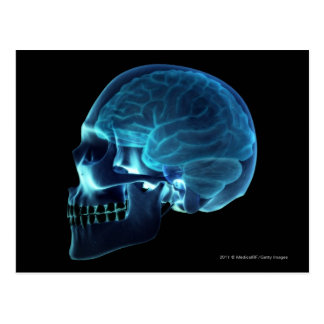 X-ray of the brain inside a skull postcard