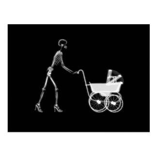 X-Ray Skeleton Mom & Baby - Original B&W Postcard
