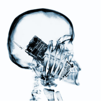 X-RAY SKELETON ON PHONE - BLUE ACRYLIC CUT OUTS