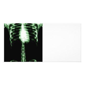 X-RAY SKELETON TORSO RIBS - GREEN CUSTOMIZED PHOTO CARD