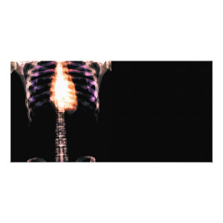 X-RAY SKELETON TORSO RIBS - ORIGINAL PERSONALIZED PHOTO CARD