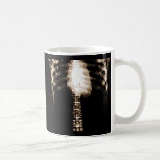 X-RAY SKELETON TORSO RIBS - SEPIA COFFEE MUG
