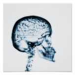 X-RAY SKULL BRAIN - BLUE