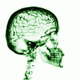 X-RAY SKULL BRAIN - GREEN STANDING PHOTO SCULPTURE