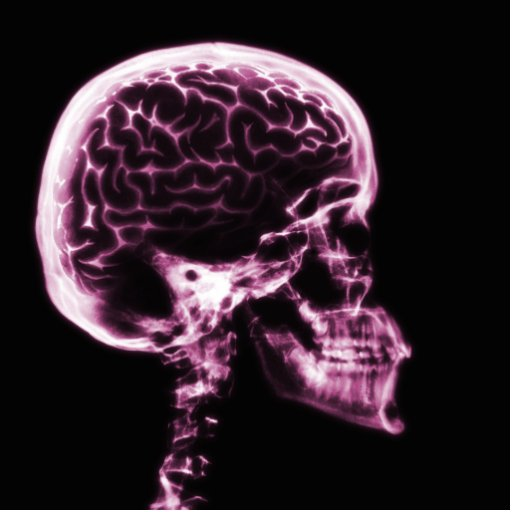 X-RAY SKULL BRAIN - PINK CUT OUT