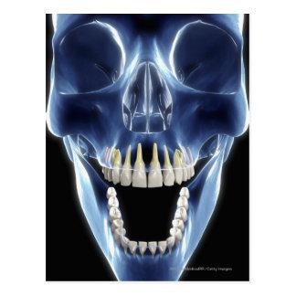 X-ray style look at human teeth postcard