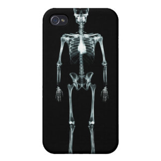 X-Ray Vision Single Skeleton - Black Original iPhone 4/4S Cover