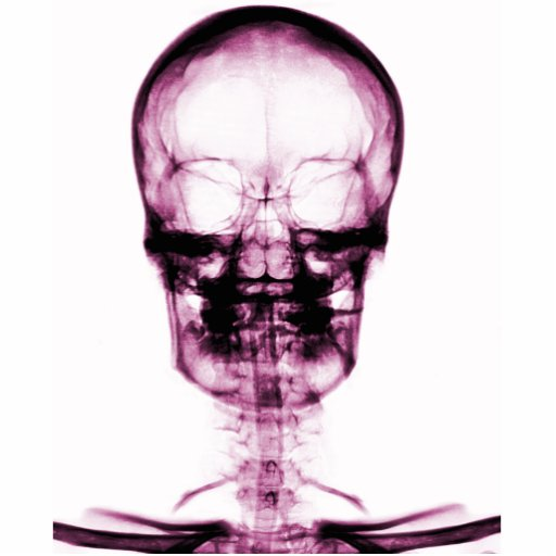 X-RAY VISION SKELETON SKULL - PINK PHOTO SCULPTURE