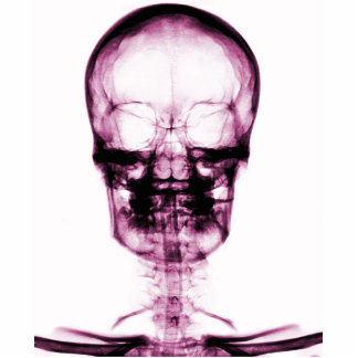 X-RAY VISION SKELETON SKULL - PINK STANDING PHOTO SCULPTURE