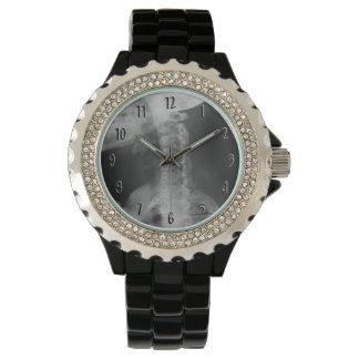 X-rayed 2 (Original) Wrist Watch