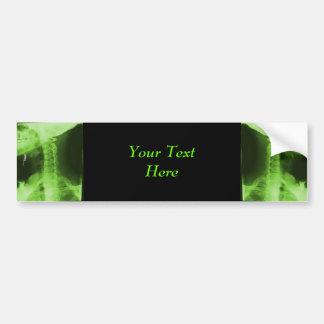 X-rayed 2 - Radioactive Green Bumper Sticker