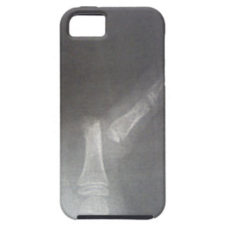 Xray iPhone 5 Cases